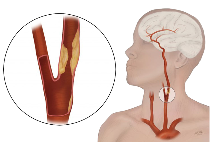 Illustration of human head and neck with enlarged pull-out view of carotid artery disease.