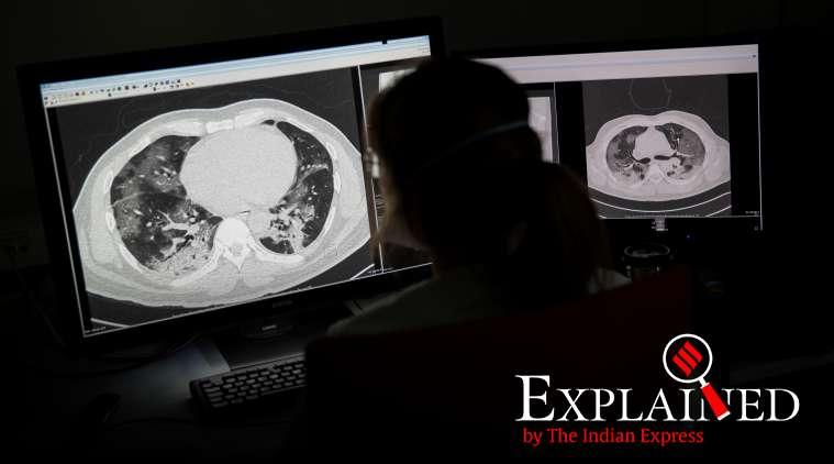 Explained: How coronavirus enters lungs, affects breathing
