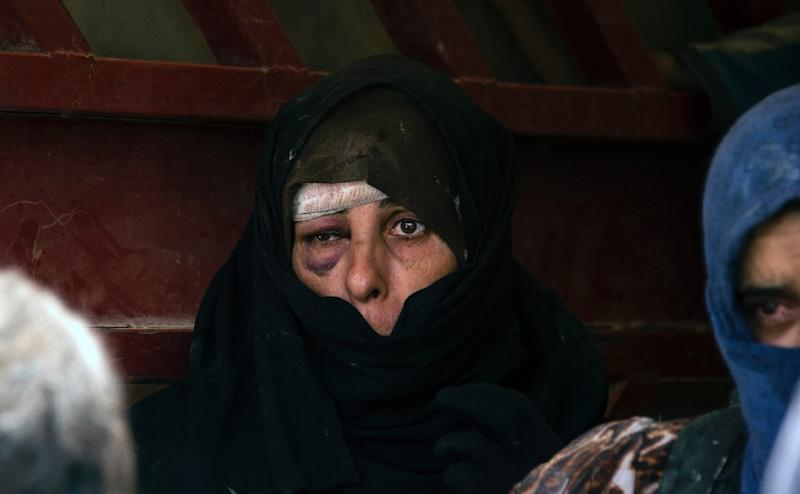 An Iraqi woman, who has fled fighting between government forces and the last jihadists in Mosul's Old City, awaits to be relocated on July 8, 2017