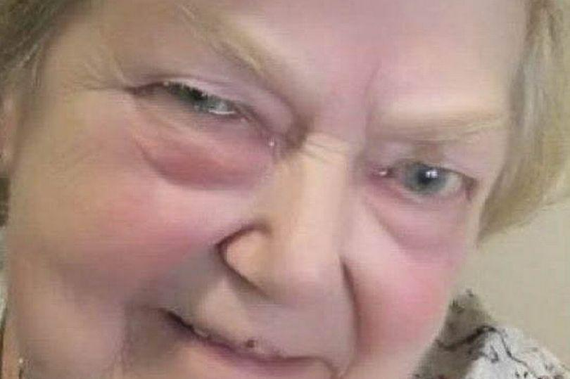 The 76-year-old was defrauded of thousands of pounds. (SWNS)