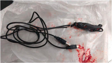 The USB cord after it had been removed. Source: Urology Case Reports
