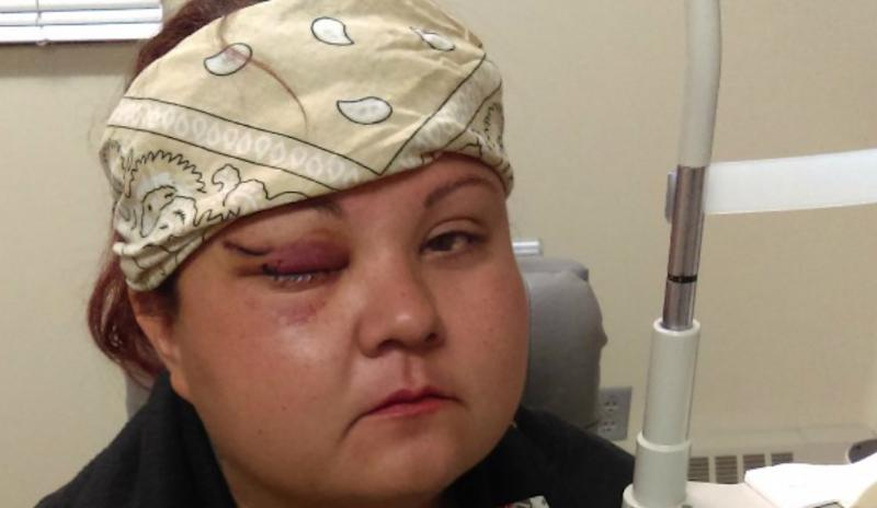 vanessa-dundon standing rock protester hit in face