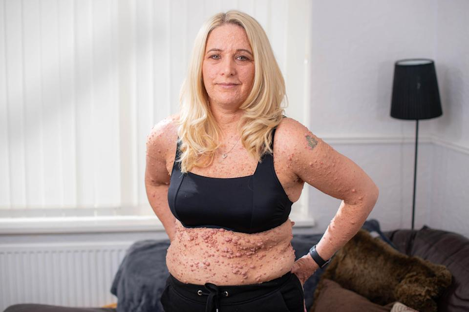 Rachael Reynolds suffers from neurofibromatosis type 1 (NF1), which has left her body covered in bubble-like lesions [Photo: SWNS]