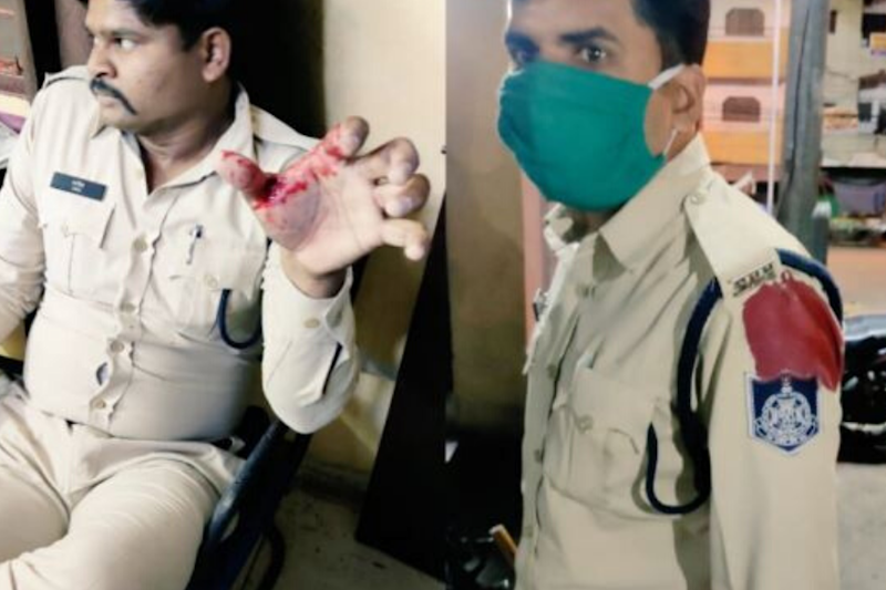MP Cops Enforcing Lockdown Stabbed, CM Shivraj Says Accused to be Booked Under NSA