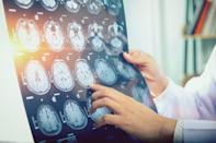 """While we often hear that 26 is the magic age at which our brains finally decide to grow up once and for all, a new study says otherwise. According to researchers at <a href=""""https://medicalxpress.com/news/2010-12-brain-fully-mature-30s-40s.html"""" rel=""""nofollow noopener"""" target=""""_blank"""" data-ylk=""""slk:University College London's Institute of Cognitive Neuroscience"""" class=""""link rapid-noclick-resp"""">University College London's Institute of Cognitive Neuroscience</a>, the brain's prefrontal cortex continues to evolve well into our 40s, meaning you can finally enjoy the full benefit of all that learning you've been doing for the past four decades."""