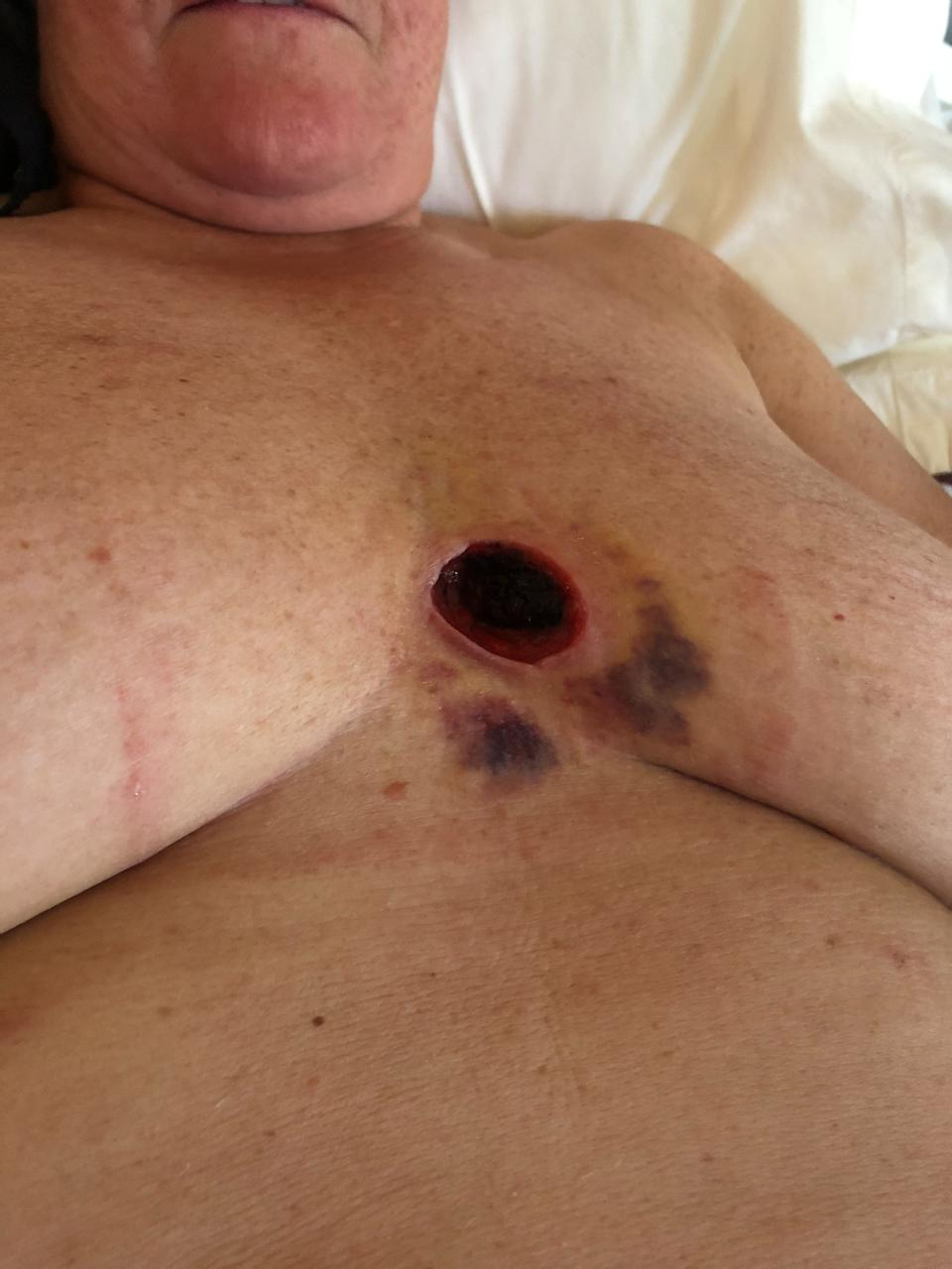 Lynne McConnell's chest after surgery. [Photo: SWNS]