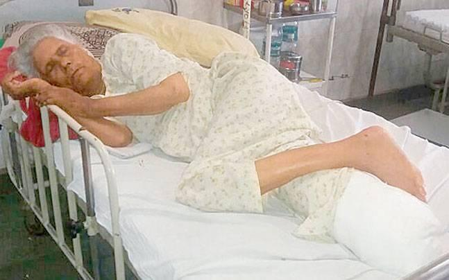How Delhi doctors' mass leave for a day cost this 60-year-old her leg
