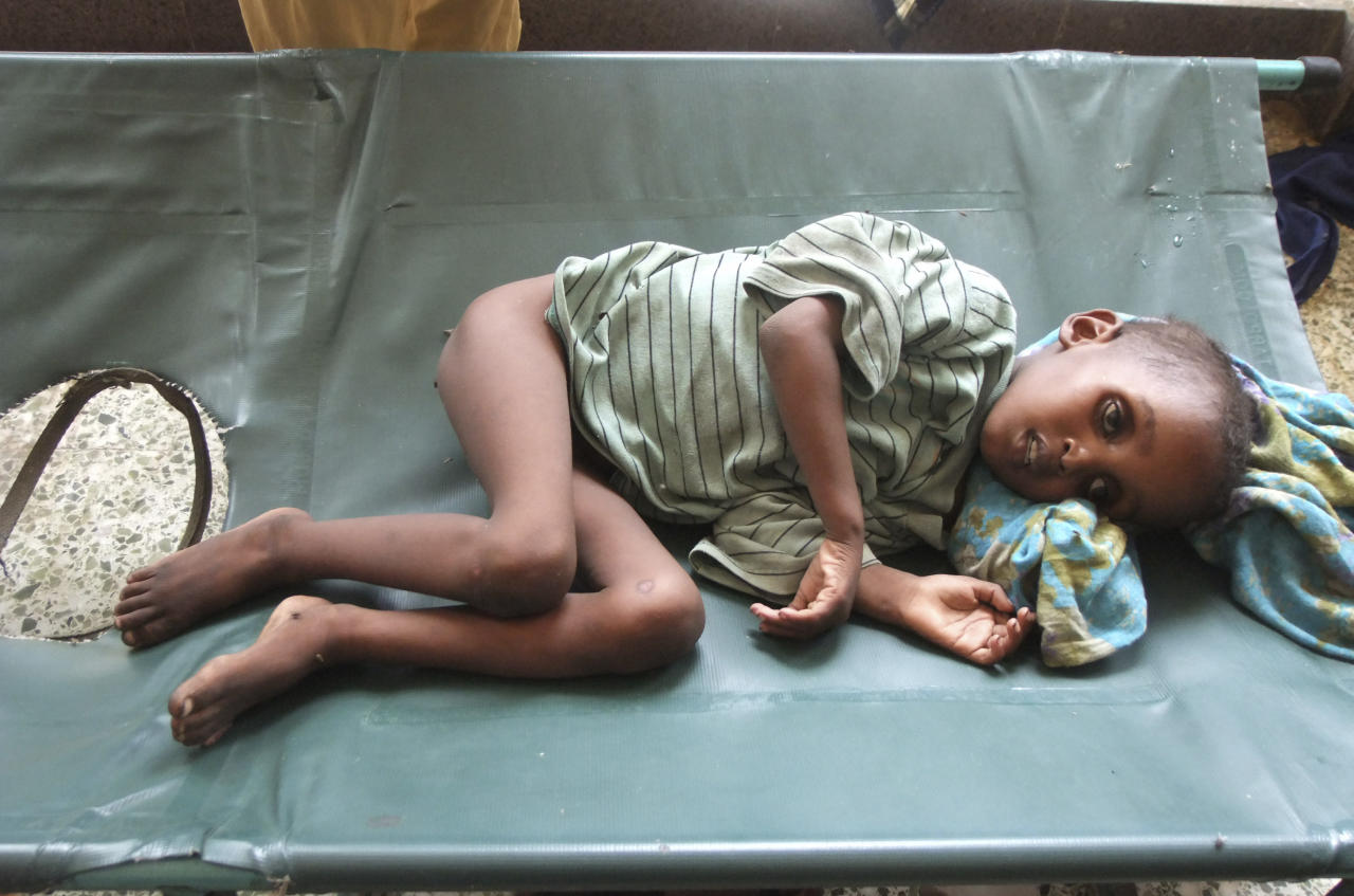 "Daud Karama 5-year-old malnourished child from southern Somalia lies on bed at Banadir hospital, Mogadishu, Somalia, Tuesday, July 26, 2011, after fleeing from southern Somalia. The U.N. will airlift emergency rations this week to parts of drought-ravaged Somalia that militants banned it from more than two years ago a crisis intervention to keep hungry refugees from dying along what an official calls the ""roads of death."" The foray into the famine zone is a desperate attempt to reach at least 175,000 of the 2.2 million Somalis whom aid workers have not yet been able to help.Tens of thousands already have trekked to neighboring Kenya and Ethiopia, hoping to get aid in refugee camps. (AP Photo/Farah Abdi Warsameh)"