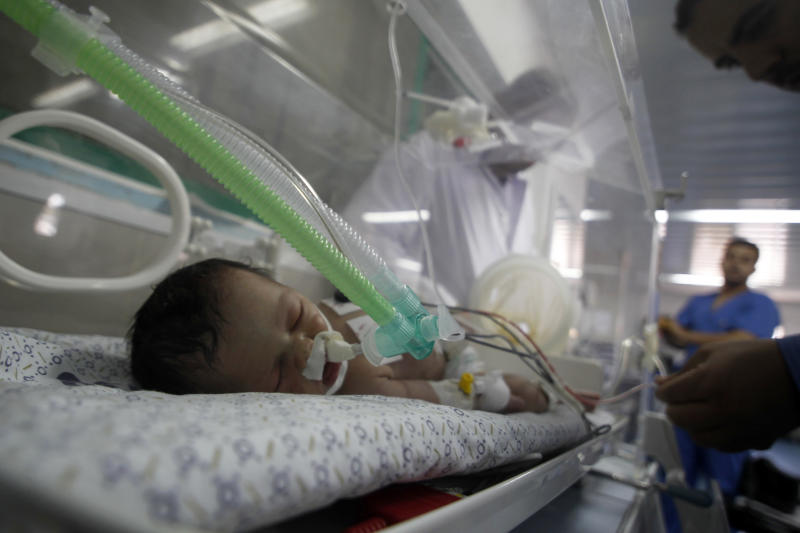 A Palestinian girl, Shayma Sheikh al-Eid, lies in an incubator at Nasser Hospital on July 27, 2014, two days after surgeons resuced her from her dead mother's womb