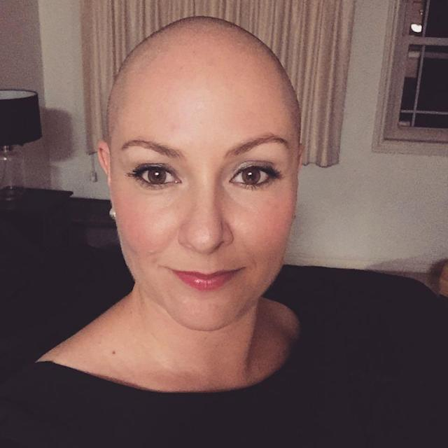 A decade after losing her hair to alopecia, Bianca Young is ready to date again. (Photo: Bianca Young/Facebook)