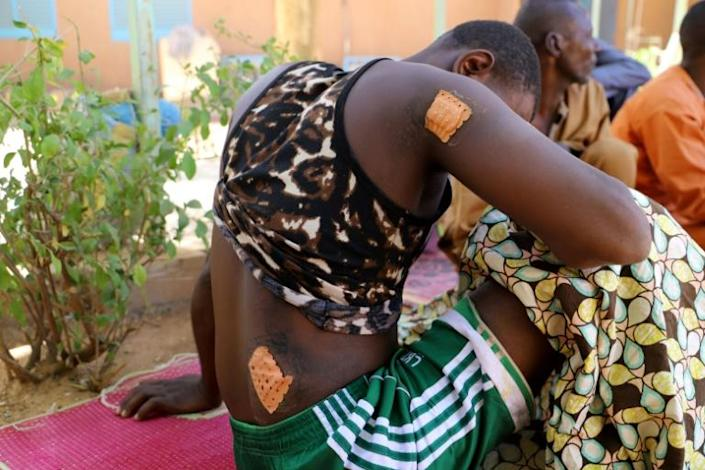 One of the survivors from a brutal massacre in Niger's Zaroumadareye shows his wounds