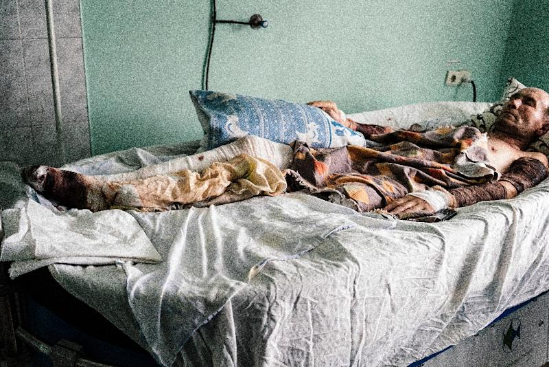 Picture taken on April 2, 2015, shows a wounded pro-Russian rebel lying in a bed in Donetsk hospital (AFP Photo/Dimitar Dilkoff)