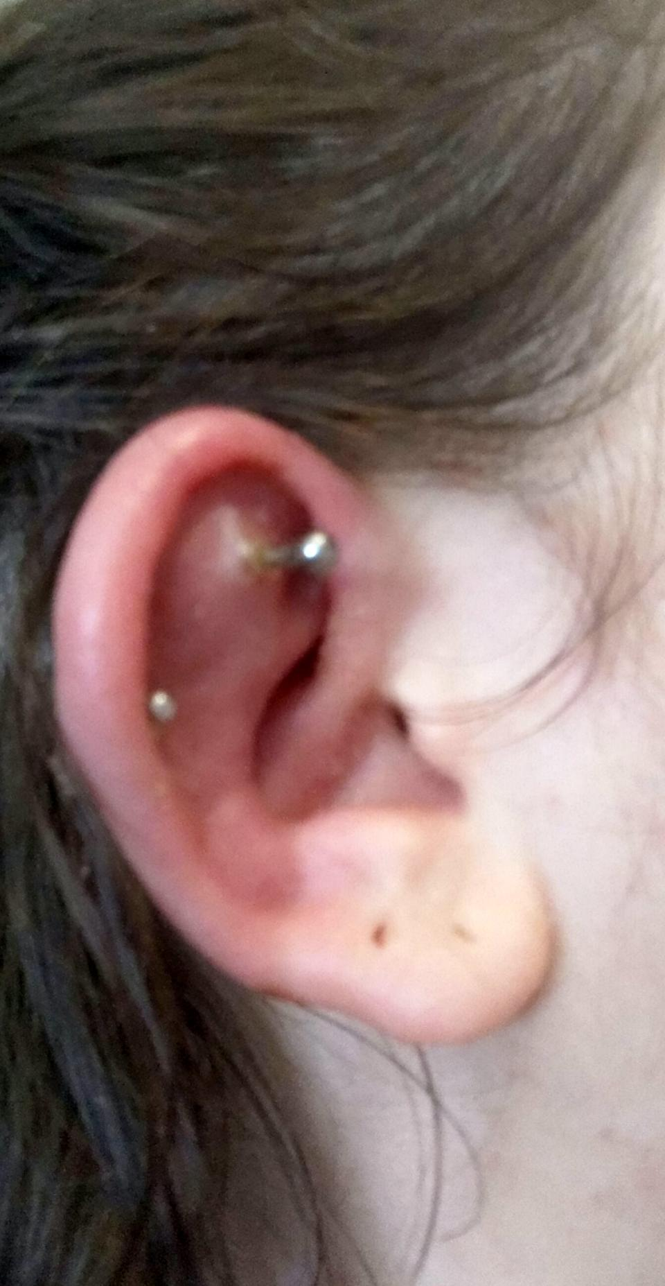 Stella Blezard's ear a few days after the piercing. (SWNS)