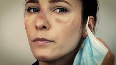 Protect the sensitive skin on your face with a gentle kinesiology mini i-STRIPS from Spidertech. Due to the recent pandemic, our Healthcare Professionals are under the toughest conditions. They have no choice but to wear a face mask for protection. Prolonged use of facemask is taking its toll on their skin and face. Now there is a solution to face mask skin damage & irritation. By combining masks with our gentle Kinesiololgy tape, you can protect your skin! (CNW Group/SpiderTech)