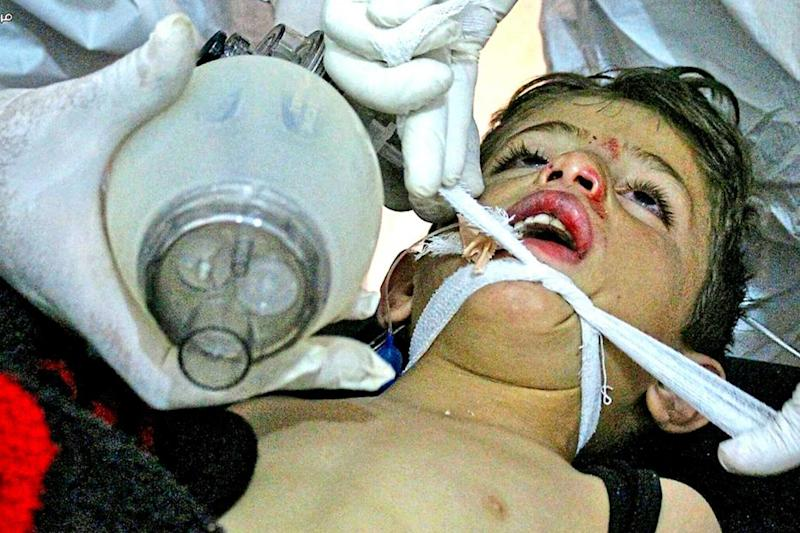 Torment: doctors treat a child following a chemical gas attack (AP)