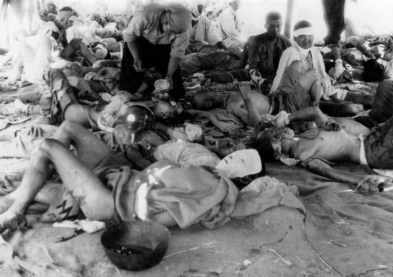 <p>Victims of the atomic bombing of Hiroshima on August 6, 1945 are seen at an emergency relief station in the Otagawa River embankment in Hiroshima, Japan on August 9, 1945. (REUTERS/Yotsugi Kawahara/Hiroshima Peace Memorial Museum) </p>