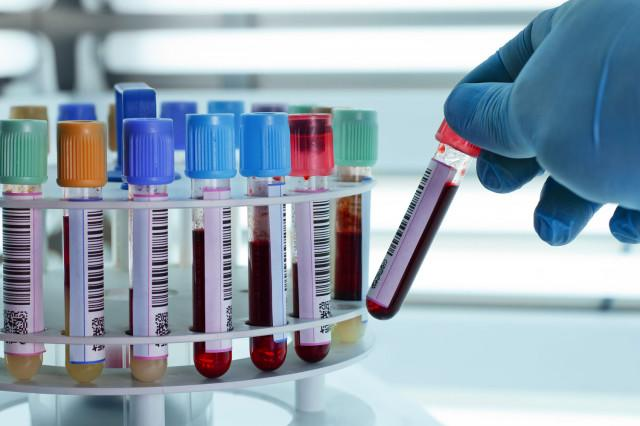 autism blood test in labratory centrifuge tubes