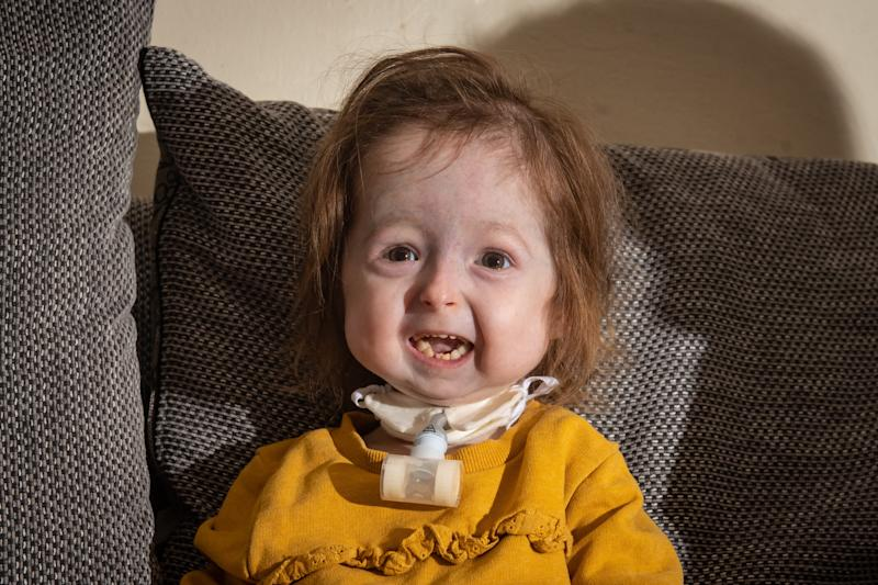 Isla Kilpatrick-Screaton from Leicester, UK, who was born with mandibuloacral dysplasia, and is the only child in the world recorded with this condition. See SWNS story SWMDcondition. A toddler from Leicester is the only child in the world with a terrifying life-threatening condition. After two-year-old Isla Kilpatrick-Screaton was born she had a whole host of medical problems and it was a month before her parents, Kyle and Stacey, were able to take her home. But she had to be rushed back to hospital soon after when she turned blue. She had to be resuscitated after another emergency when she was 10 months old, and it was discovered that her tongue was blocking her narrow airway every time she became upset. A tracheostomy was performed, to make sure she was no longer at risk of suffocation, which left her unable to cry. Isla was diagnosed with mandibuloacral dysplasia, a condition that causes a variety of abnormalities involving bone development and skin colouring. She also has a heart condition and very narrow airways. Isla is able to speak some words but her main form of communication is Makaton sign language. Their genetic consultant told Stacey and Kyle that Isla is the only child in the world recorded with this condition and she is being studied by numerous consultants, paving the way for other children with the condition in the future.