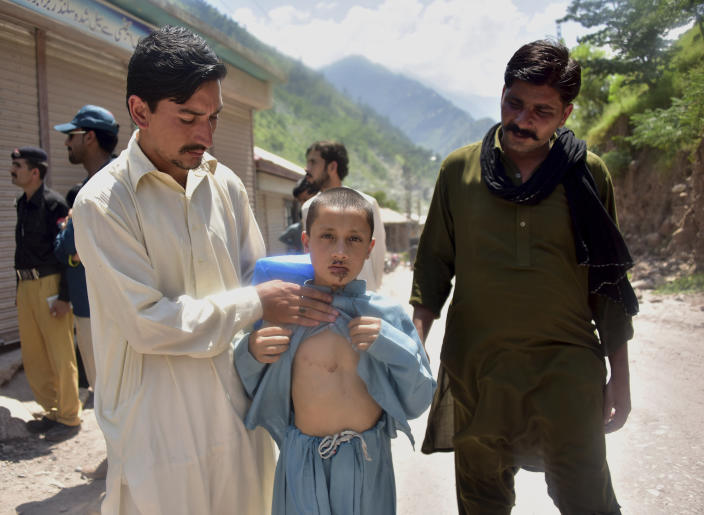 A Pakistani Kashmiri father, left, shows the wounds his son Mazhar Hussain received when Indian forces fired on Nosehri village on the Line of Control that divides Kashmir between Pakistan India, near Muzaffarabad, Pakistan, Sunday, Aug. 4, 2019. Tensions have soared along the volatile, highly militarized frontier between India and Pakistan in the disputed Himalayan region of Kashmir, as India deployed more troops and ordered thousands of visitors out of the region. (AP Photo/M.D. Mughal)
