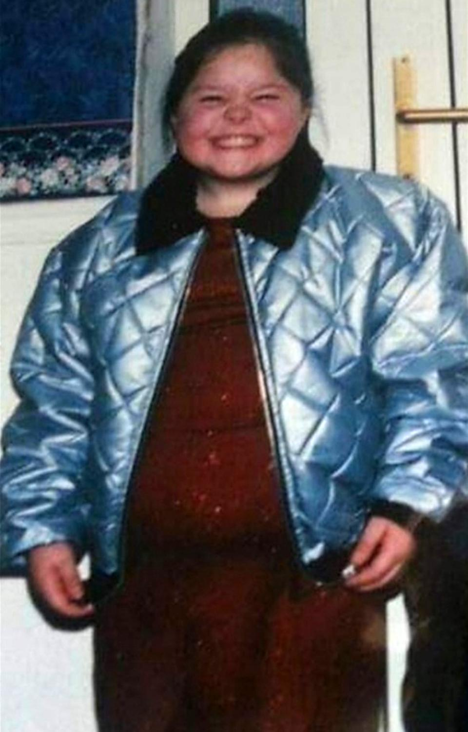 Leanne Kendellen says that before losing weight she was obese since she was six-years-old. (Caters)