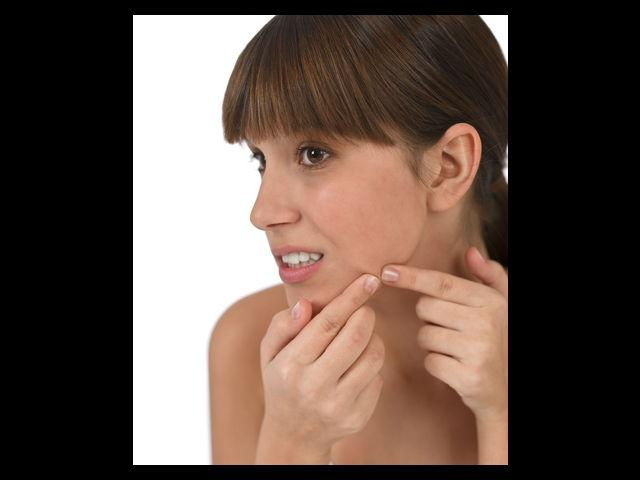 <b>Keep pimples at bay</b><br><br>The root cause of pimples is the hormonal imbalance in your body. Pomegranates are a rich source of Vitamin C which regulates the production of sebum, an oily substance secreted by your skin and which is the main cause of pimples. Pomegranates also help in improving your blood circulation and improving digestion.<br><br><b>Beauty Tip:</b> If you want to enjoy the skin care benefits of pomegranates then mix pomegranate seeds (1tbsp) with some brown sugar (2tbsp) , honey (2tbsp), avocado oil (2tbsp) and orange peel (1tsp) to make a scrub. Use it daily for a few minutes for best results.