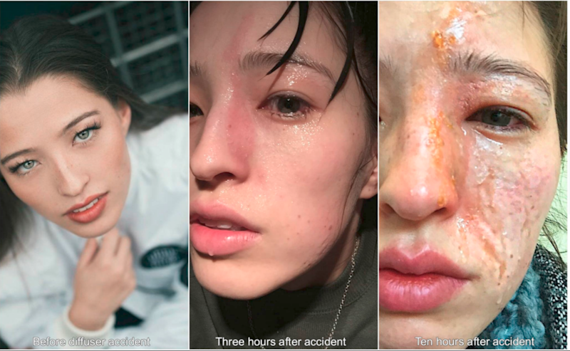 A woman suffered horrific burns from diffusing essential oils. Photo: Facebook/Emily Smith
