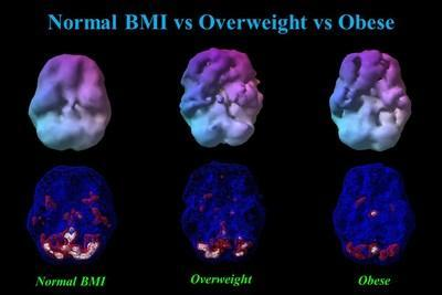 This figure shows 3-D renderings of blood flow averaged across normal BMI (BMI = 23), overweight (BMI = 29), and obese (BMI = 37) men, each 40 years of age.