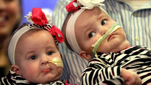 Once-Conjoined Twins Make Debut