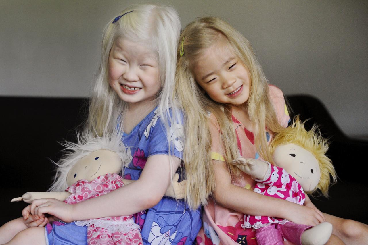 """Siblings Maeve, 7, and Mairéad Contant, 5, are adopted from China and have albinism, a genetic condition where there is little or no production of the pigment melanin. Mom Anne Contant turned to Amy Jandrisevits, creator of <a href=""""https://www.facebook.com/nannysbabiestoodollslikeme"""">A Doll Like Me</a>, to see if she could create dolls that <a href=""""https://people.com/parents/khloe-kardashian-daughter-true-biracial-baby-doll-pottery-barn/"""">looked like her daughters</a>.  """"We really wanted Maeve, and her siblings, Mairéad and Liam, to have have dolls that looked like them,"""" says Contant. """"I looked everywhere, but I was not able to find any Asian dolls that had pure white hair and pale blue eyes."""""""