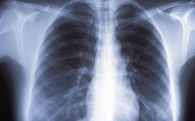 Chest X-rays are the tests GPs order if they suspect lung cancer - Getty Images Fee
