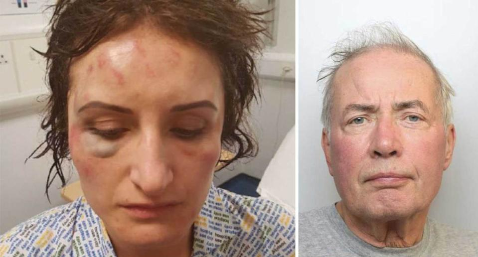 Anna Butt was attacked by her ex-husband Alec Butt. (SWNS)