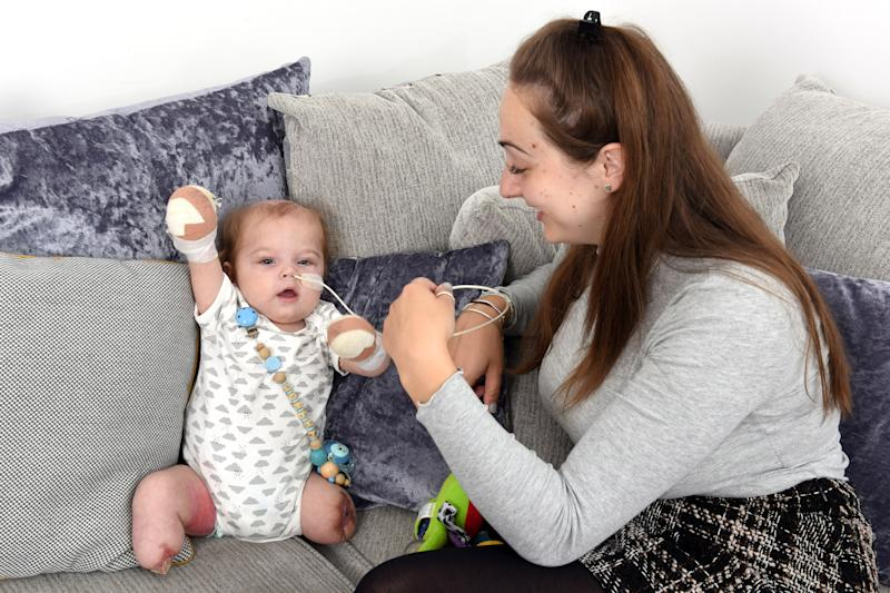 Little Oliver is now recovering at home after losing his limbs to sepsis [Photo: Caters]