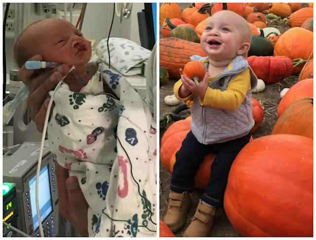 Kash was born at 35.5 weeks. I had to be induced due to preeclampsia. He weighed 4 pounds, 8 ounces and had to spend two and a half weeks in the NICU. Kash was also born with a cleft lip and cleft palate. He is now 1 and doing amazing!<br><br><i>--Haley Larson</i>