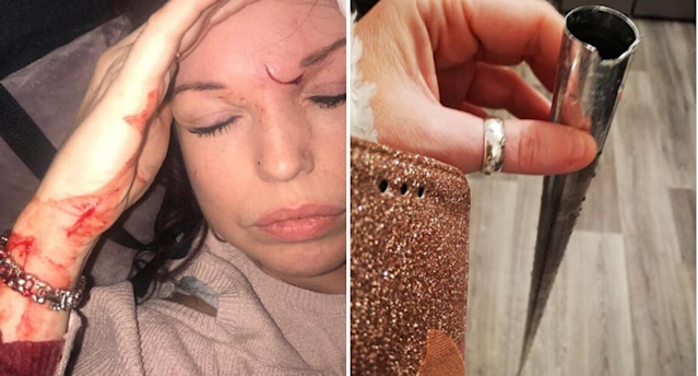 Mum Clarissa Clary suffered an injury just centimetres from her eye when a toy she had bought for her son sprang open (Photo: Supplied)