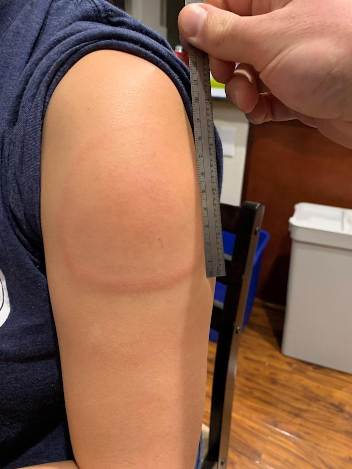 """A harmless but annoying rash that appears in some people who have gotten the Moderna vaccine for COVID-19.  Doctors have tentatively dubbed it """"delayed cutaneous hypersensitivity"""" but laypeople are calling it """"COVID arm."""""""