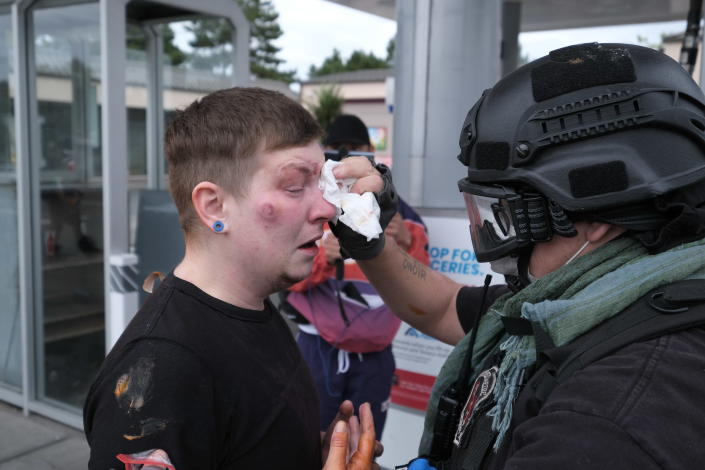 An anti-fascist protester receives medical attention after getting hit in the face with a paintball round fired by members of the far-right group Proud Boys as the two groups clashed in Sunday, Aug. 22, 2021, in Portland, Ore. (AP Photo/Alex Milan Tracy)