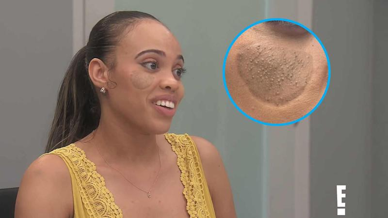 Woman Grows Pubic Hair on Face After Bad Plastic Surgery