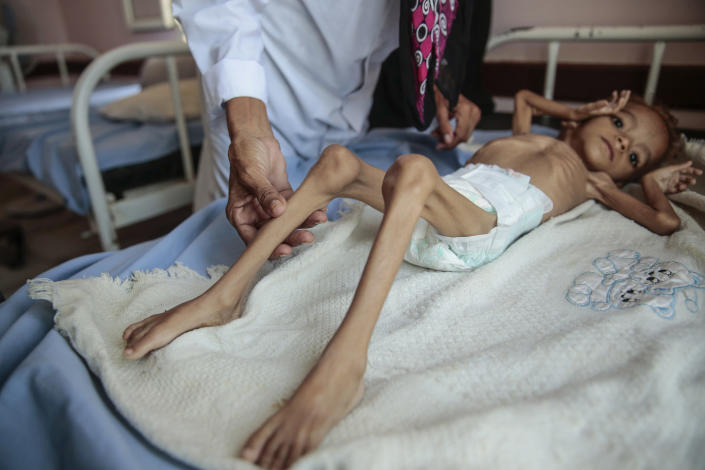 """FILE - In this Oct. 1, 2018, file photo, a severely malnourished boy rests on a hospital bed at the Aslam Health Center in Hajjah, Yemen. A leading aid organization on Monday, Jan. 11, 2021 warned that U.S. Secretary of State Mike Pompeo's move to designate Yemen's Iran-backed Houthi rebels as a """"foreign terrorist organization"""" would deal another """"devastating blow"""" to the impoverished and war-torn nation. (AP Photo/Hani Mohammed, File)"""