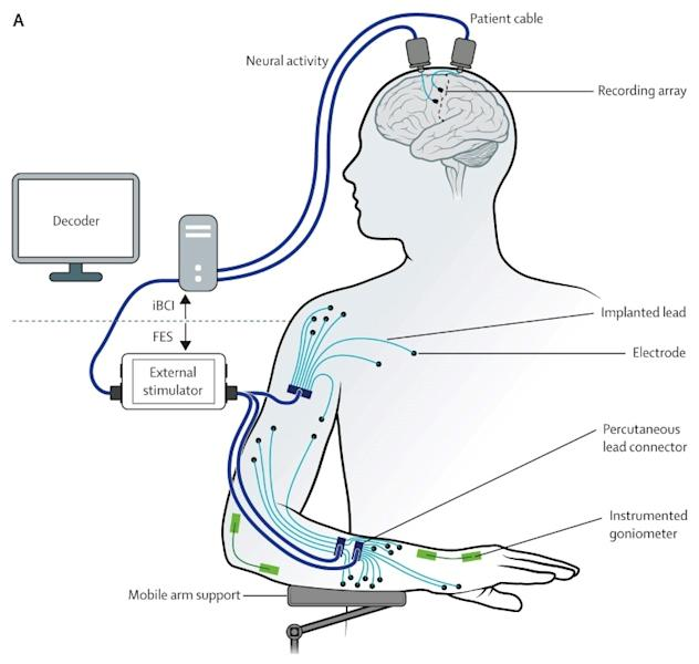 This handout image released on March 29 2017 by The Lancet journal shows a diagram depecting the restoration of reaching and grasping movements through brain-controlled muscle stimulation in a person with tetraplegia