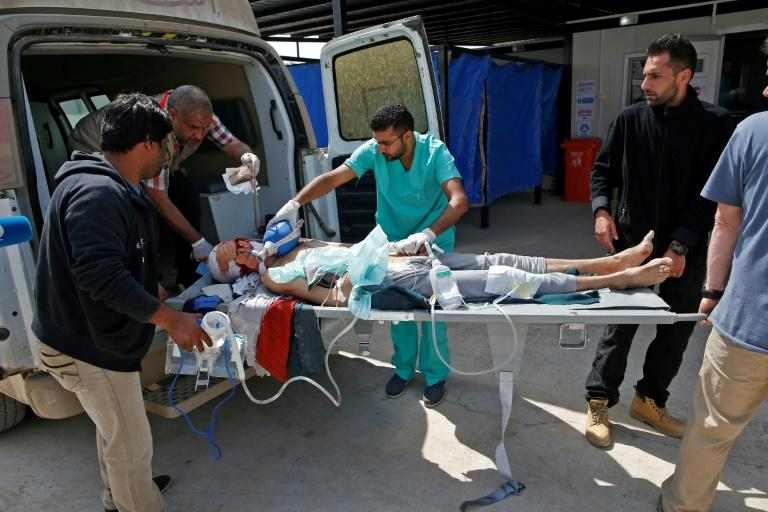 A civilian injured during the ongoing fighting between Iraq government forces and Islamic State (IS) group jihadists in Mosul is wheeled into a trauma field hospital
