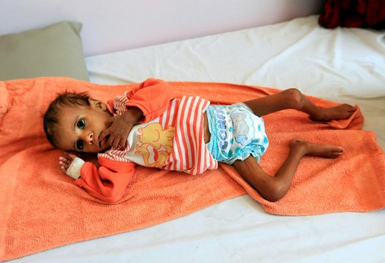 The war in Yemen has left the country on the brink of famine, with an estimated 24 million people, some 80 percent of the population, depending on aid to survive (AFP Photo/Mohammed HUWAIS)