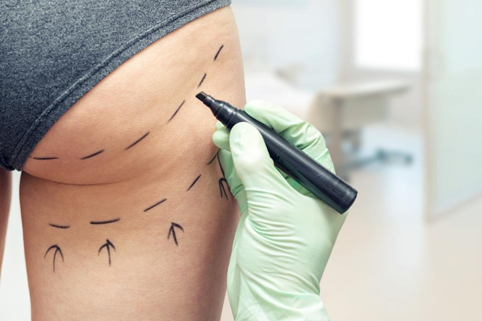 Plastic surgeon marking a woman's body for plastic surgery. (Getty Images)