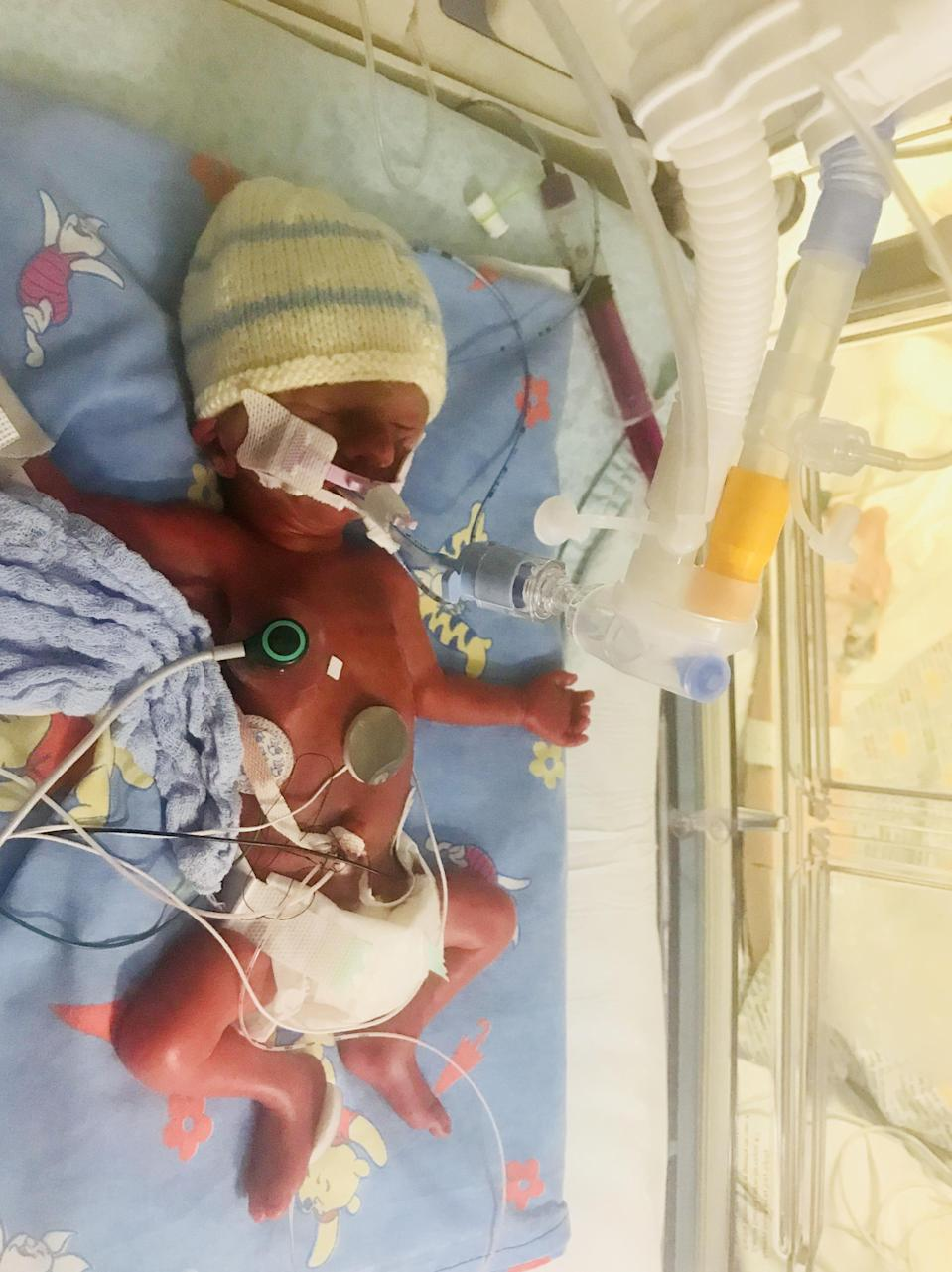 Marleigh was born weighing just 1lb 13oz when he was born [Photo: SWNS]