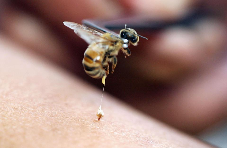 Bee acupuncture, or apitherapy, is an alternative healing practice whereby bee stings are used as treatment for various conditions and diseases. (Photo: Dimas Ardian/Getty Images)