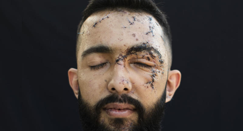 Hussein Haidar, 27, who got injured at his office during the Aug. 4 explosion that killed more than 170 people, injured thousands and caused widespread destruction, poses for a photograph at his parents' house in Beirut, Lebanon, Friday, Aug. 14, 2020. (AP Photo/Hassan Ammar)