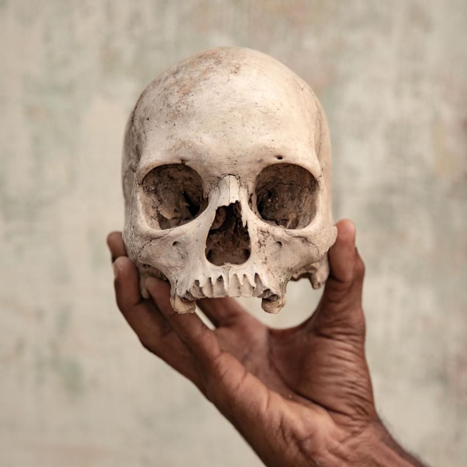 <p>India, Tamil Nadu, May 2018. One of the skulls claimed to be the skull of a farmer who committed suicide, held by Mr Premkumar, a member of the South Indian Farmers Association. This skull was also used during a protest in Delhi in 2017, where farmers demanded a drought relief package and loan waiver for peasants from the state. But what leads farmers to this extreme act? They run into debt to invest in production, agriculture-related activities, machinery maintenance, and to repay previous loans. Despite these efforts, harvests damaged by adverse weather, economic factors, and short-sighted water management lead to debt repayment failure. Thus, a kernel of slow and gradual mental agony sneaks into these land workers' minds and grows into the shame they feel towards their family and society.<br /><br />Series Name: Five Degrees<br /><br />Could the dramatic increase in Indian farmers who take their own lives be closely connected to climate change and rising temperatures? A study from Berkeley University, found a correlation between climate change and suicide among Indian farmers. It is estimated that 59,300 farmer suicides over the last 30 years are attributable to climate change. According to experts, temperatures in India could increase by another 5°F by 2050. Without focused government intervention, global warming will lead to more suicides all over India. But what leads farmers to this extreme act? They run into debt through investing in production, and repaying previous loans. Despite these efforts, harvests damaged by adverse weather, and short-sighted water management lead to debt repayment failure. The impact of climate change affects global wellbeing, going beyond India and threatening mankind as a whole. This project is located in Tamil Nadu, the southernmost state of India, which is facing the worst drought for 140 years.<br /><br />Copyright: © Federico Borella, Italy, Photographer of the Year, Professional, Documentary (Professional), 2019 Sony World