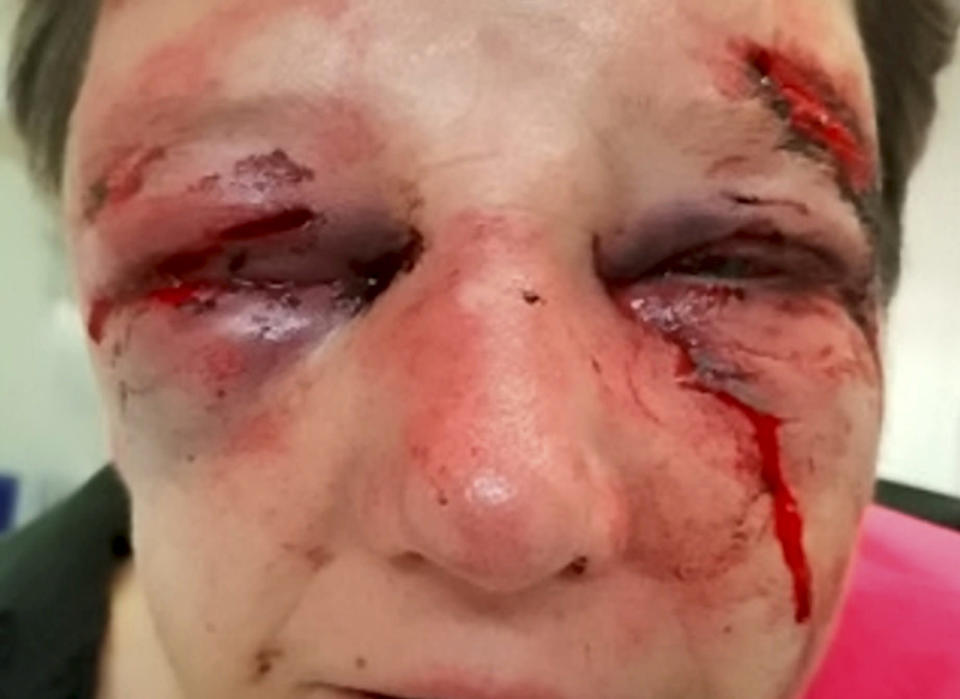<em>A 50-year-old woman suffered horrific injuries during a violent robbery at her home (Picture: SWNS)</em>