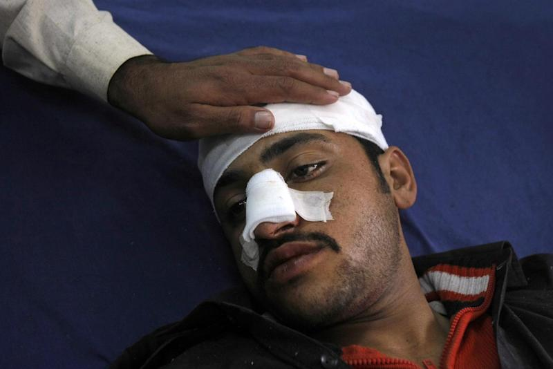 A Pakistani man, who was injured in a bomb blast near Peshawar, Pakistan, is comforted by a relative while laying in a hospital's bed receiving treatment, Saturday, March 1, 2014. Two bombs exploded minutes apart in northwest Pakistan, striking tribal police assigned to guard polio workers and killing several, police said. The Pakistani Taliban announced Saturday that the group will observe a one-month cease-fire as part of efforts to negotiate a peace deal with the government, throwing new life into a foundering peace process. (AP Photo/Mohammad Sajjad)