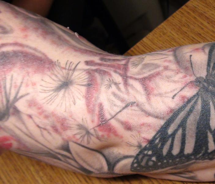In this Jan 2012 photo provided by the Monroe County (N.Y.) Department of Public Health a persons arm is seen after receiving a tattoo covered with a red bubbly rash. As more people get tattoos, health officials are seeing more cases of a nasty skin infection blamed on the ink. In the largest outbreak reported, 19 people in Rochester, N.Y., recently ended up with bubbly rashes over their new tattoos. Cases also occurred in Colorado, Iowa and Washington States this year, health officials say. All together, the four states had 22 lab-confirmed tattoo-related infections and more than 30 suspected additional cases. (AP Photo/Monroe County (N.Y.) Department)