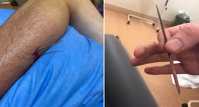 Left - a barb in Liam Richards' leg. Right - someone holding the barb once it was removed.